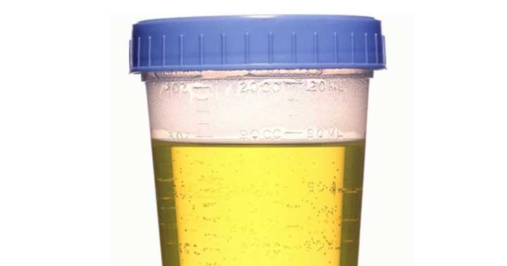 simpatia com urina para amarração